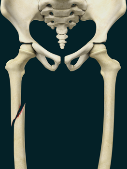 Pediatric Thigh Bone Fracture