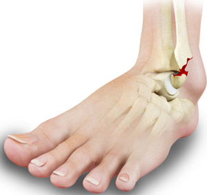 Stress Fractures Of The Foot Ankle Atlanta Ga Ankle Fractures Treatment